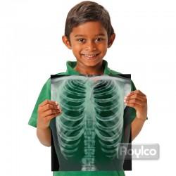 Rayos X del Cuerpo Humano
